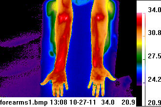 thermogram heat picture of forearms