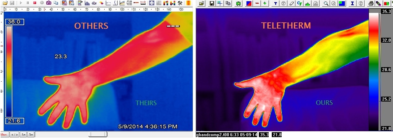 Comparing thermal images industrial vs medical