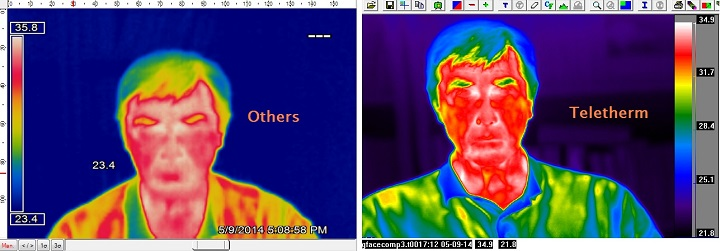 comparison of infrared imagers view                             of face