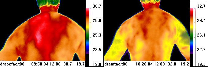 thermal image before & after                         acupuncture