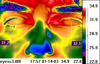 Facial thermal imaging - periorbital                             region of eyes