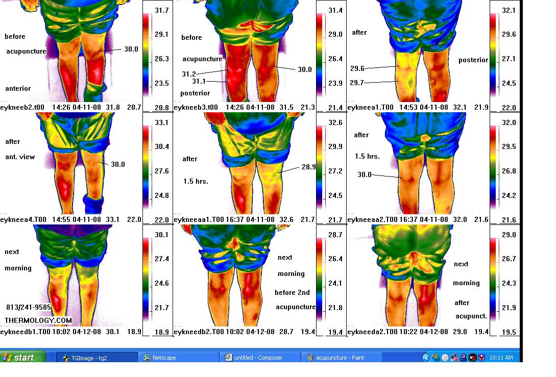 acupuncture before after series thermal images